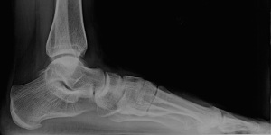 Left Foot X-Ray